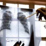 Migračná vlna priniesla hrozbu nebezpečných infekčných chorôb.